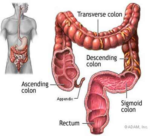 colon cancer: cause, symptoms and prevention